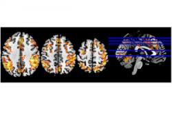 An example of the fMRI images being captured and analised